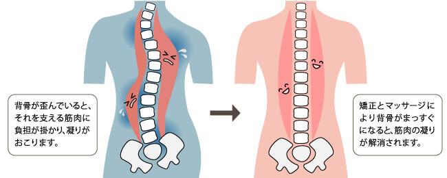 背骨の歪みと筋肉の凝り